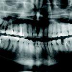 Proč vlastně máme zuby moudrosti?
